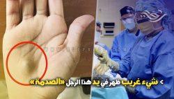 شيء غريب ظهر في يد هذا الرجل وعندما ذهب الى المستشفى كانت الصدمة